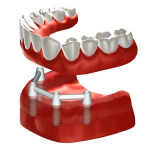 Zahnloser Unterkiefer mit 4 Implantaten zur Befestigung einer Vollprothese. © Institut Straumann AG, 2013. Alle Rechte vorbehalten. Mit freundlicher Genehmigung der Institut Straumann AG