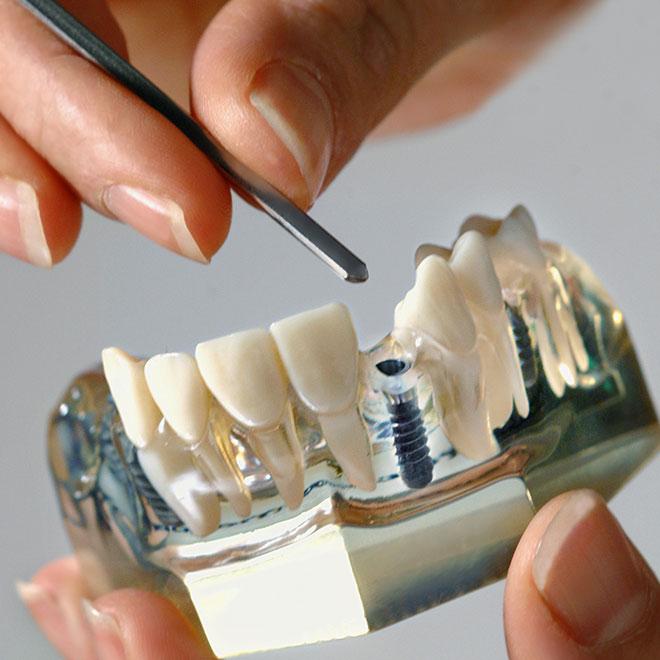 Implantatmodell. Foto Dietrich Hackenberg - www.lichtbild.org